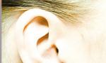Conheça a otoplastia e corrija orelhas de abano