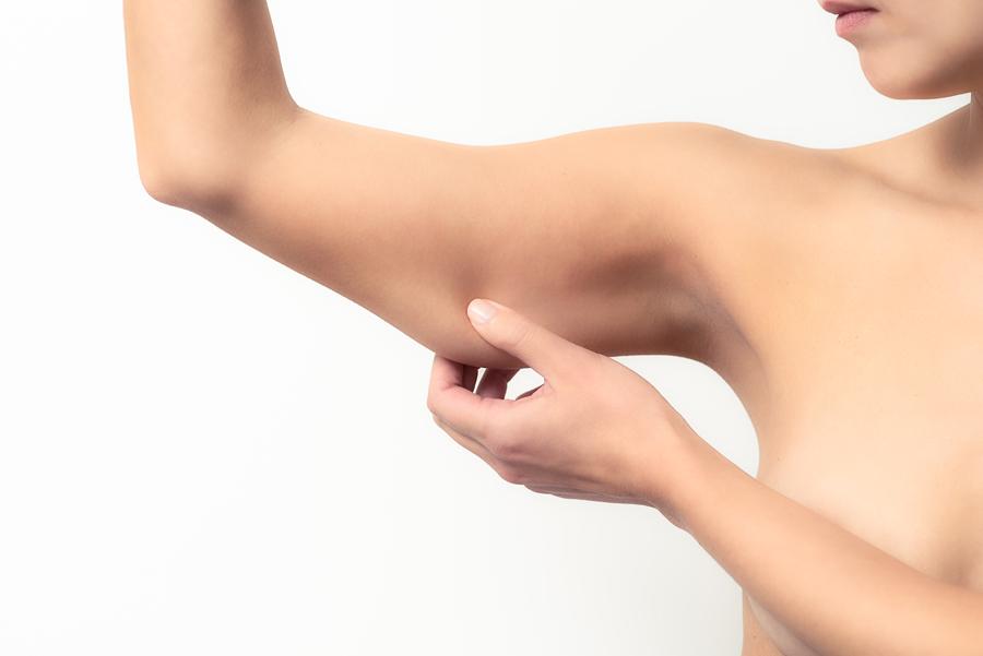 Cirurgia plástica para tratar flacidez excessiva