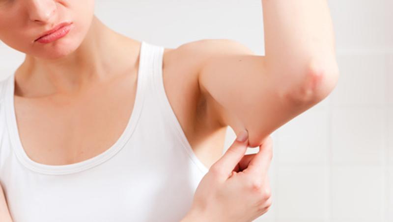 cirurgia plástica nos braços